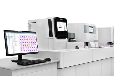 El analizador digital de morfología celular Mindray MC-80 ofrece más para el análisis morfológico.